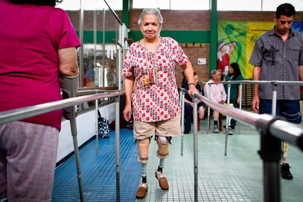 Nu kan Ana gå igen- tack vare proteser!